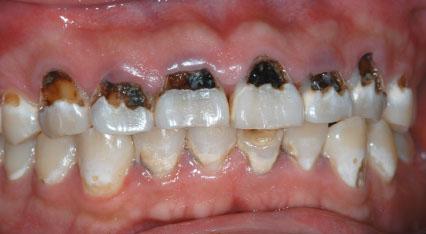 Contoh gigi karyawan bank membuat ngeri